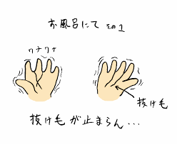 抜け毛1.png